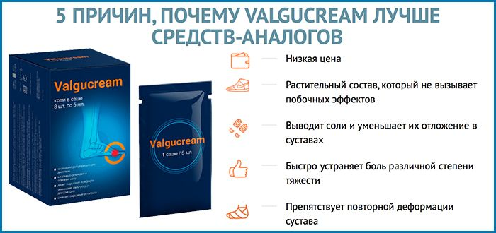 Valgucream - Крем от вальгусной деформации свойства