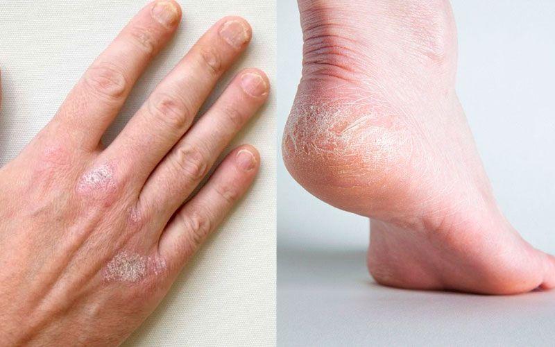 сухие руки и ноги
