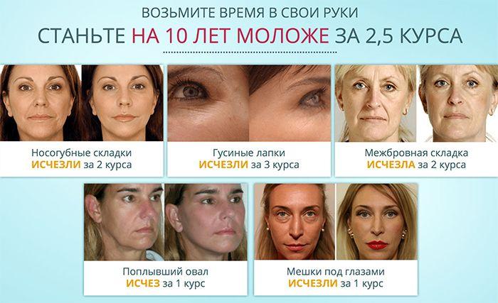 Bioretin - омолаживающий крем свойства