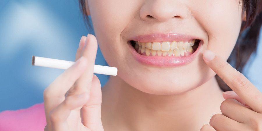 Пожелтевшие зубы