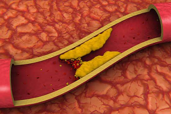 Средства от холестерина