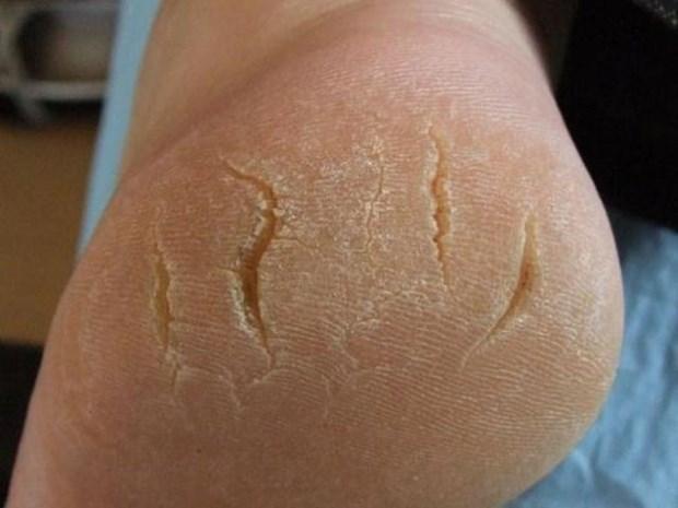 Трещины на стопах