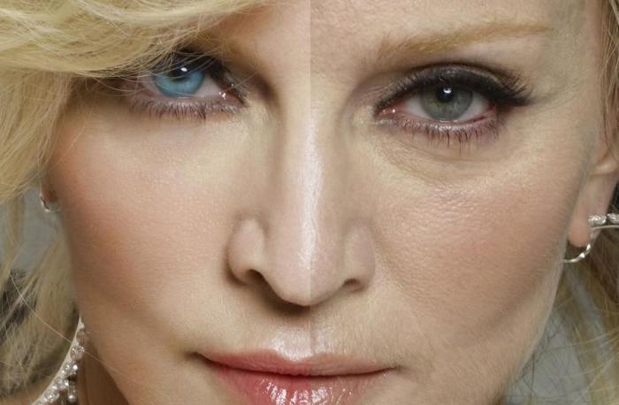 Морщины и старение кожи глаз