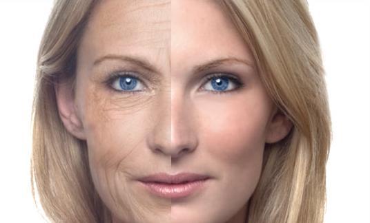 Старение кожи морщины
